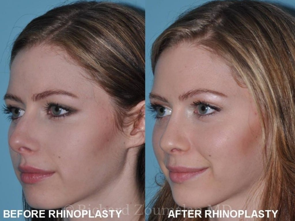 rhinoplasty-before-after-04