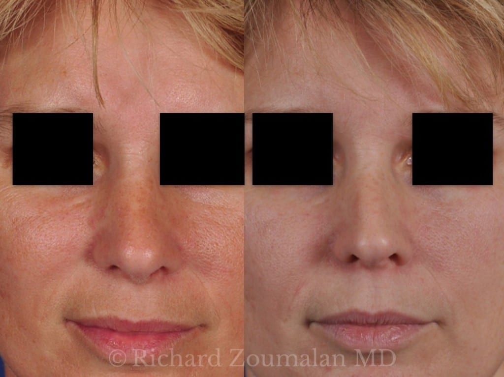 rhinoplasty-before-after-10