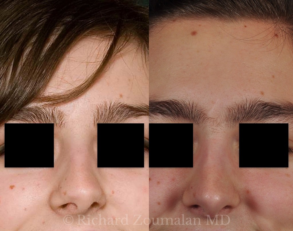 rhinoplasty-before-after-20