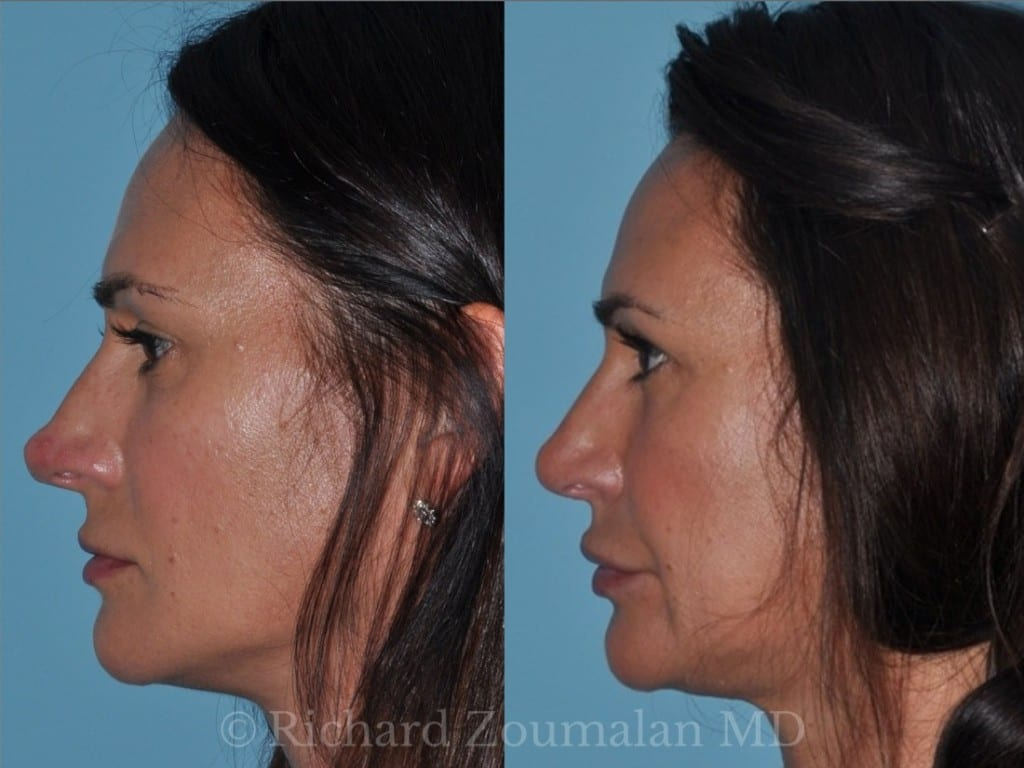 rhinoplasty-before-after-7-months-02