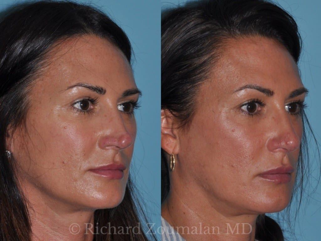 rhinoplasty-before-after-7-months-05