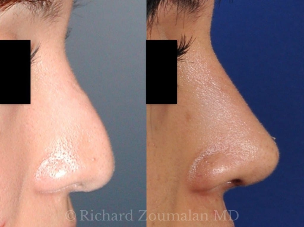 rhinoplasty-closeup-01