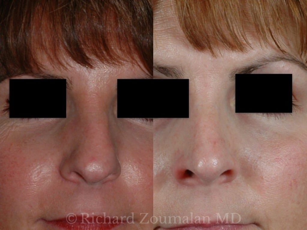 rhinoplasty-side-by-side-01