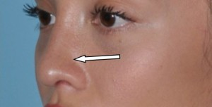 rhinoplasty-term-alar-groove