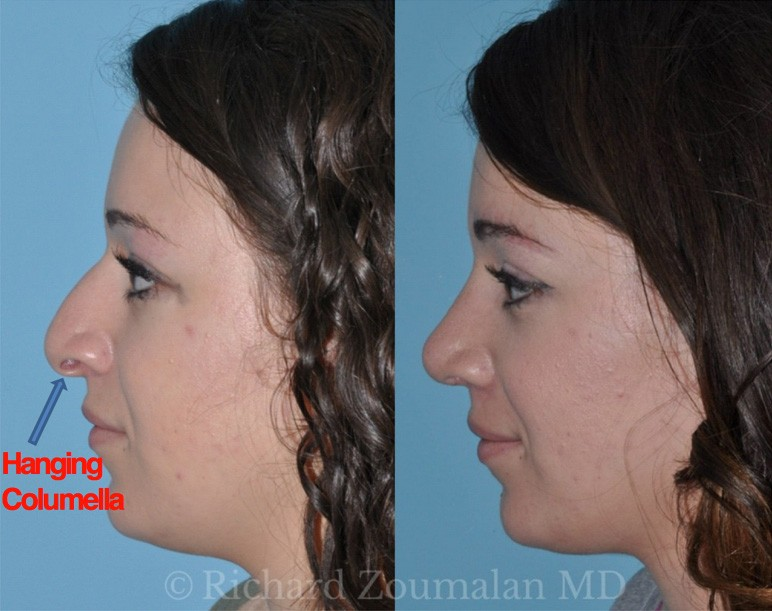 rhinoplasty-term-hanging-columella