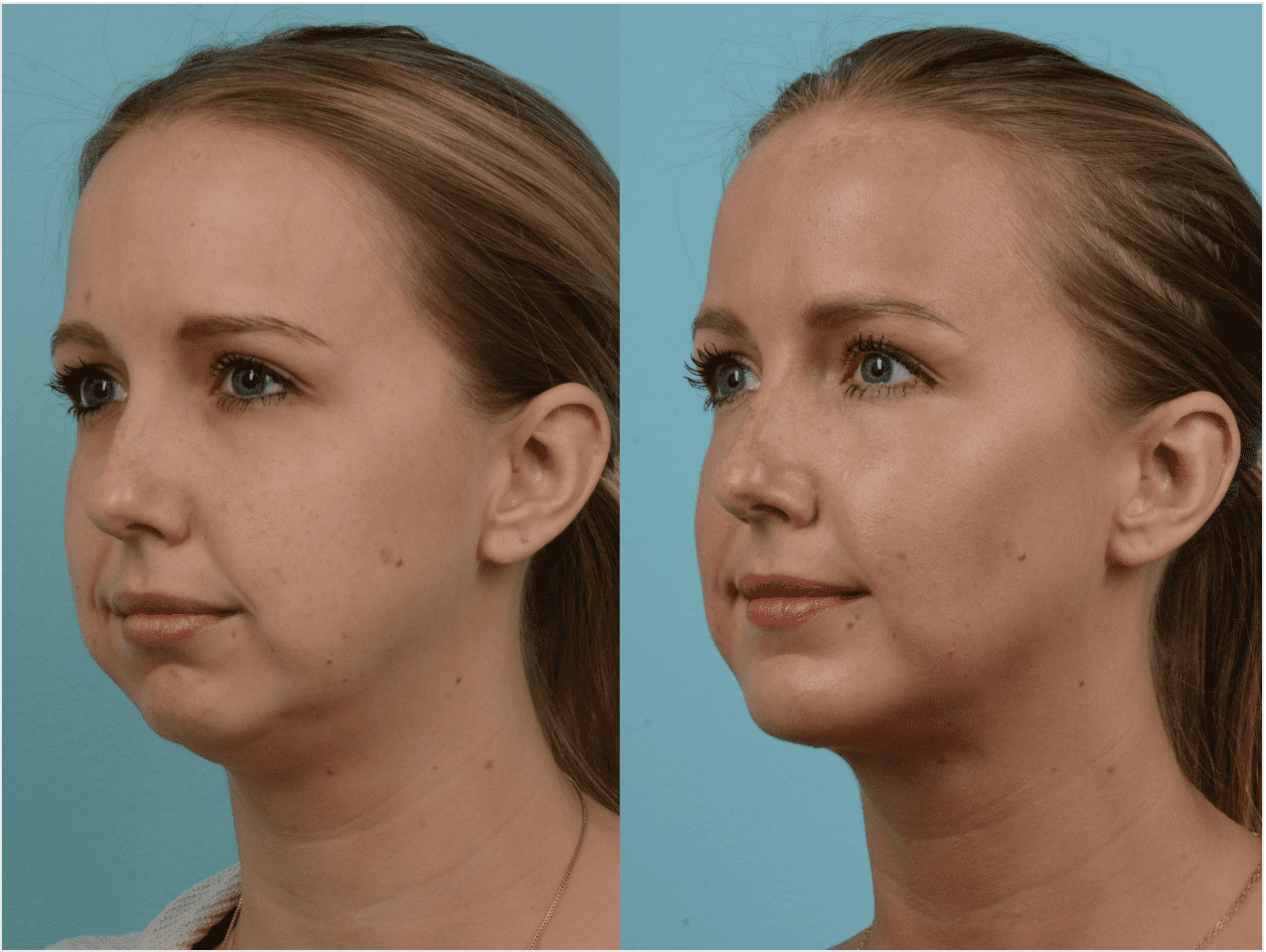 how to lose cheek and neck fat